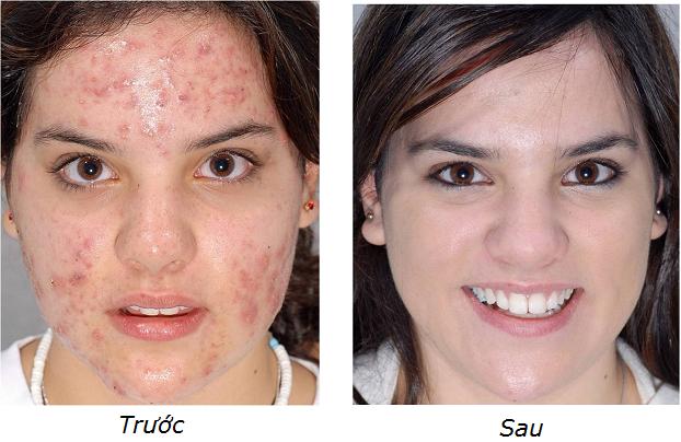 trước và sau khi điều trị mụn giori